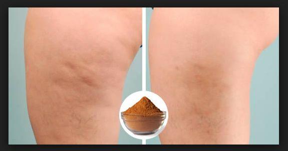 Tra i rimedi naturali per combattere la cellulite c'è anche l'utilizzo della cannella, ecco cosa possiamo fare