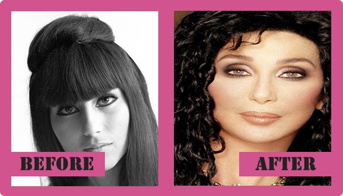 Cher Plastic Surgery Before And After Cher Plastic Surgery #CherPlasticSurgery #Cher #gossipmagazines