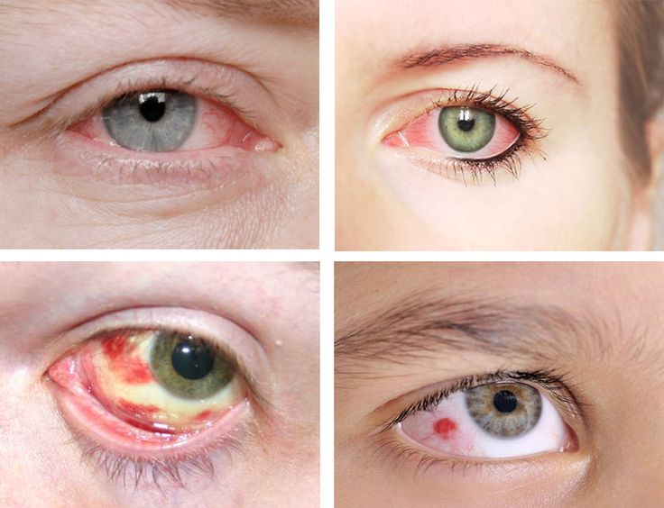 red spot in eye,Causes of red spots under the eyes,how to get rid of red spot in the eye,how to treat red spot in eyes,cure red spots under the eyes,