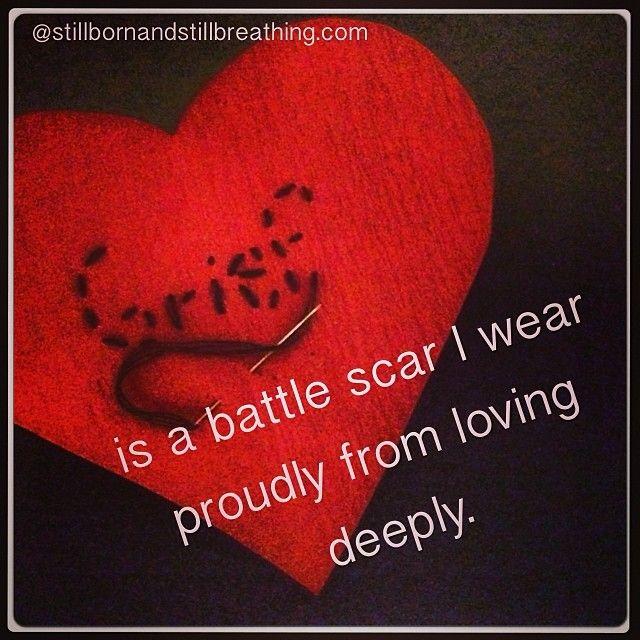 https://www.facebook.com/StillBreathingLindsey #grief #loss #childloss #babyloss #pregnancyloss