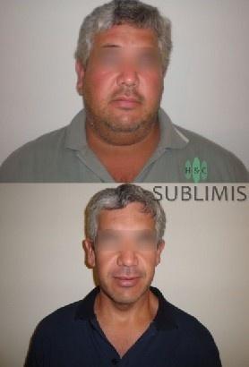 Foto de antes y despues de una cirugia de banda gastrica. Cirugia realizada en Cordoba, Argentina por especialistas de Sublimis.