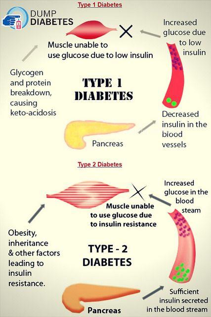 Doctors Reversed Diabetes in Three Weeks! - type 2 diabetes
