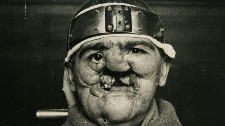 Les 16 meilleures images du tableau Gueules Cassées sur Pinterest   La grande guerre, Chirurgie ...