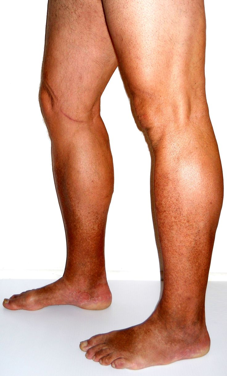 best exercise for varicose veins in legs