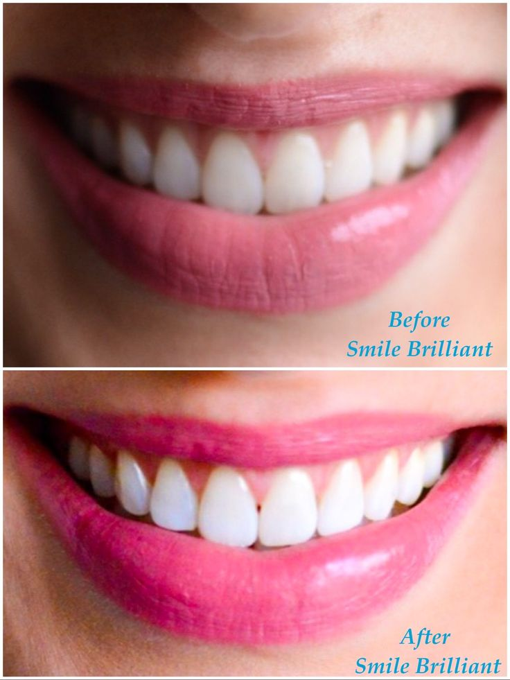 Read my review of the best at-home teeth whitening kit by Smile Brilliant. It's for sensitive teeth, too! Plus, you can enter for a chance to win!