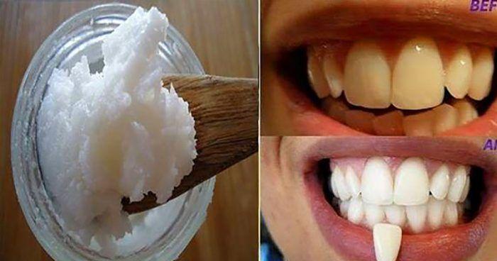 """A Gundusha ou """"Kavala"""" é uma técnica natural antiga que limpa o corpo de toxinas e suporta saúde bucal e geral. Este método inclui bochecho de uma colher d"""