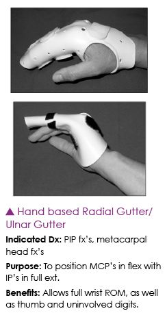 Hand Based Radial Gutter Splints Therapy Occupational