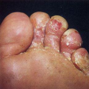 Benimde sol ayağımın serçe parmağında vardı geçen sene yazın çalışırken meydana gelmişti. yaklaşık 8 ay uğraştım geçmesi için biraz uzun sürdü tedavi süreci çünkü günde 12 saat ayakkabı içerisinde...