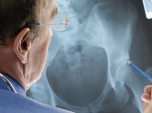 Air pollution linked to osteoporosis-related bone fractures