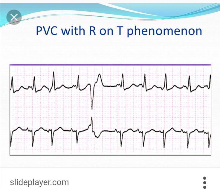 R on T PVC PVC at the peak of the T wave Can proceed
