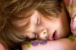 Child Tonsillectomy | Sleep Apnea in Children