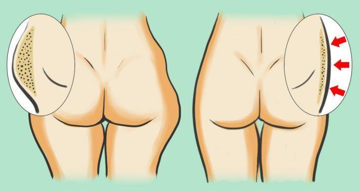 On sait très que la graisse qui s'installe au niveau des cuisses et des hanches est très difficile à brûler. Eh bien, cette phrase n'est que l'apanage des