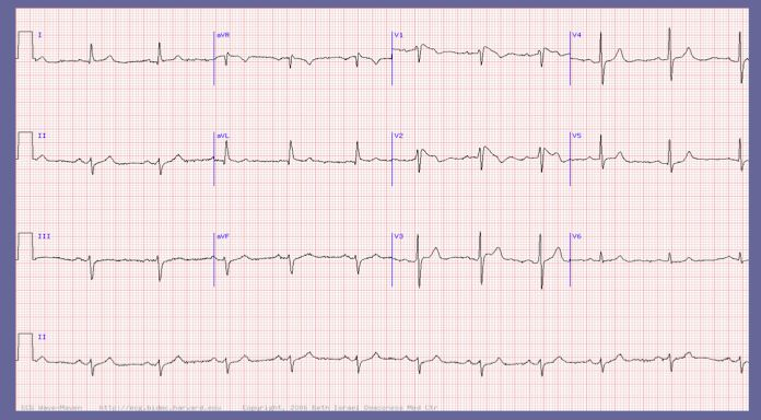 Brugada Syndrome – RBBB type pattern with ST elevations V1-2.   Sodium channelopathy, associated with sudden death.