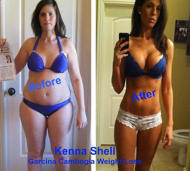 Kenna Shell - Before and After her #weight #loss. Good #Garcinia will help you lose weight. But not all Garcinia Cambogia is good. So, how to tell which is good and which is not. Dr. Julie Chen, MD, Internal Medical Consultant on the Dr. Oz TV Show, tells us what to look for. Click Here to see her recommendations. Then try the product to see if it works for you. Free Trial Here!