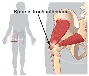 Arthrose facettaire - Bursite hanche| Chiropraticien - Chiro - À Quebec Qc - Sillery - Sainte-Foy