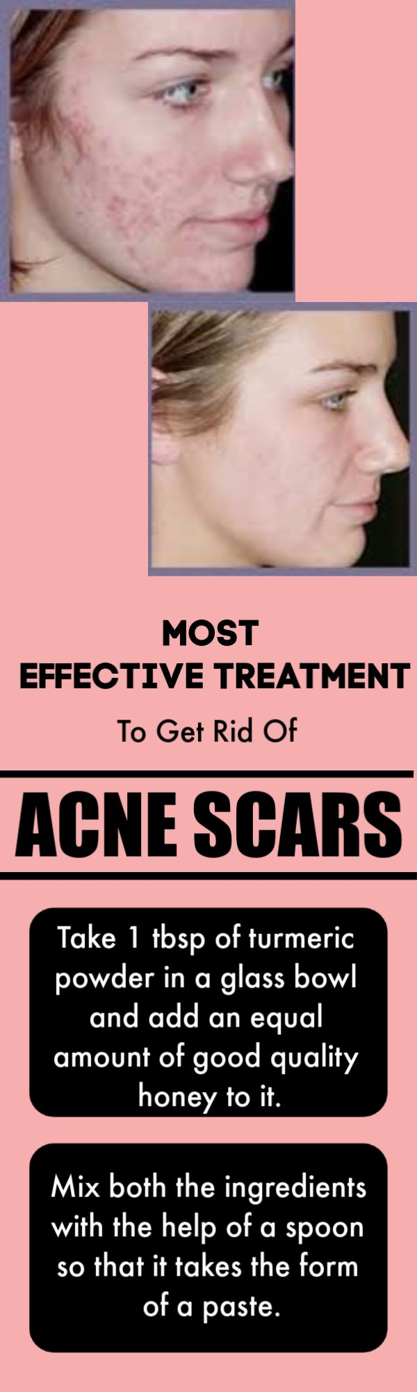 The Most Effective Home Treatment To Get Rid Of Acne Scars