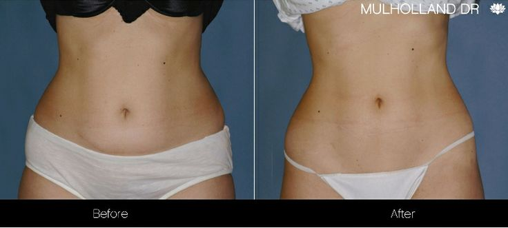 Before and after photo of a Toronto patient who've underwent laser liposuction treatments at SpaMedica #NonSurgicalLiposuction #NonSurgicalLipo #LaserLipo #Zerona #Toronto http://www.spamedica.com/non-surgical-procedures/zerona-toronto/