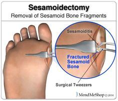 The sesamoid bones are accessed through an incision on the side of the foot. #sesamoiditis