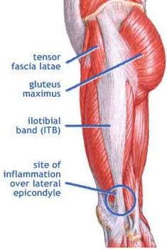 8 best Hip pain images on Pinterest | Anatomy, Hip pain and Bones