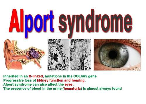 Alport syndrome : SNHL , renal disease