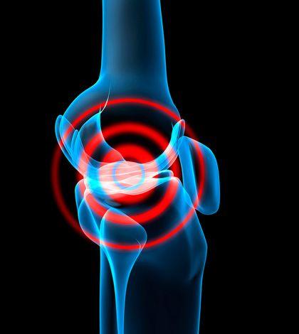 La rotura del ligamento cruzado anterior en el pádel es una lesión grave que en muchas ocasiones precisa una reconstrucción quirúrgica.