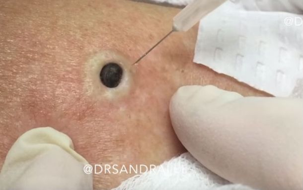 When Dr. Pimple Popper takes a look at the blackhead on the woman's upper shoulder blade, she says it seems to have been growing for years. But she's more than willing to extract what's clogging...