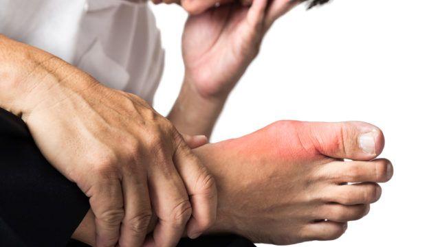 Dnavá artritída