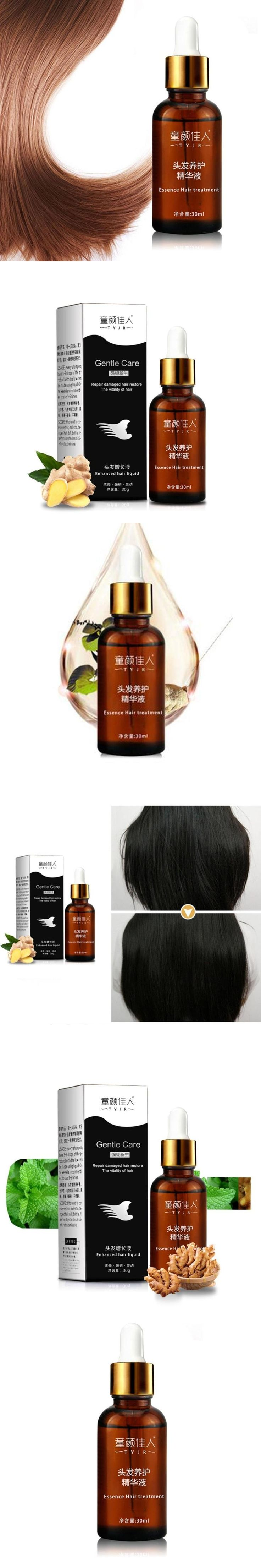 30ml hair growth essence hair loss treatment rapid hair grow best hair growth liquid A4