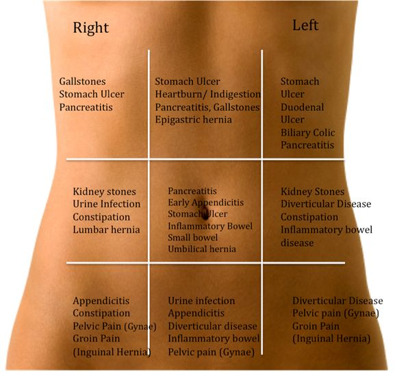 Abdominal Pain.Diseases associated with pain in certain region.Give it a read & in case if u feel any of these symptoms see your doctor today.