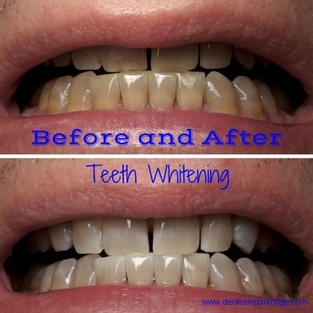 Before and After Teeth Whitening of Tetracycline Stained Teeth. Teeth with tetracycline staining can be whitened. We cannot change the gray hue with whitening, but we can brighten the teeth! In order to change the grayish tint, bonding or veneers are needed. #parkridgedentist #teethwhitening