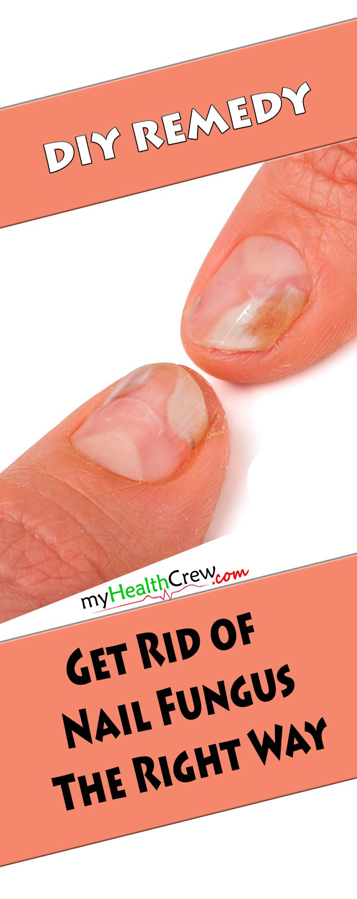 Get rid of nail fungus tips revealed! Exclusively for you! The secret Americans don't want you to know about mind-blowing tips to get rid of nail fungus