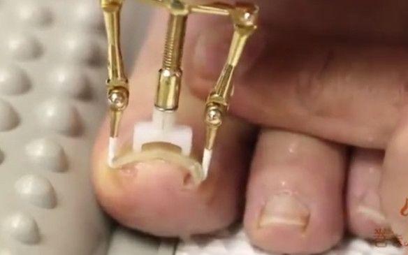 ¿Uñas del pie encarnadas? Inventan un aparato para evitarlo… Y es angustioso — cribeo