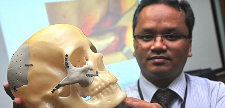 Facial implants created by a 3D printer have cured severe headaches for one woman in Malaysia.