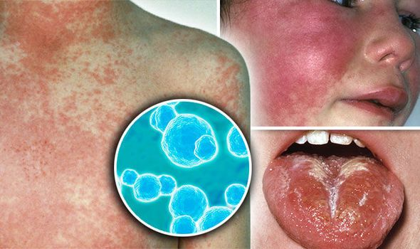 You Can See More: Scarlet fever outbreak: Cases more than DOUBLE average - how to spot symptoms