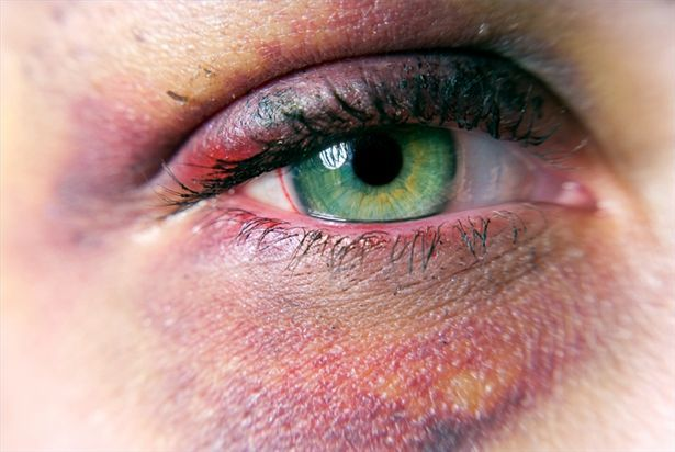 Google Image Result for http://img.ehowcdn.com/article-new/ehow/images/a02/2l/f3/treat-black-eye-bruise-800x800.jpg