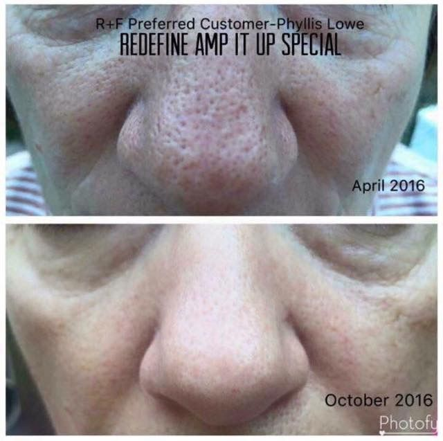 Large Pores? Redefine your pores with the Rodan +Fields Redefine Regimen and Amp MD Roller. #LifeChangingSkincare