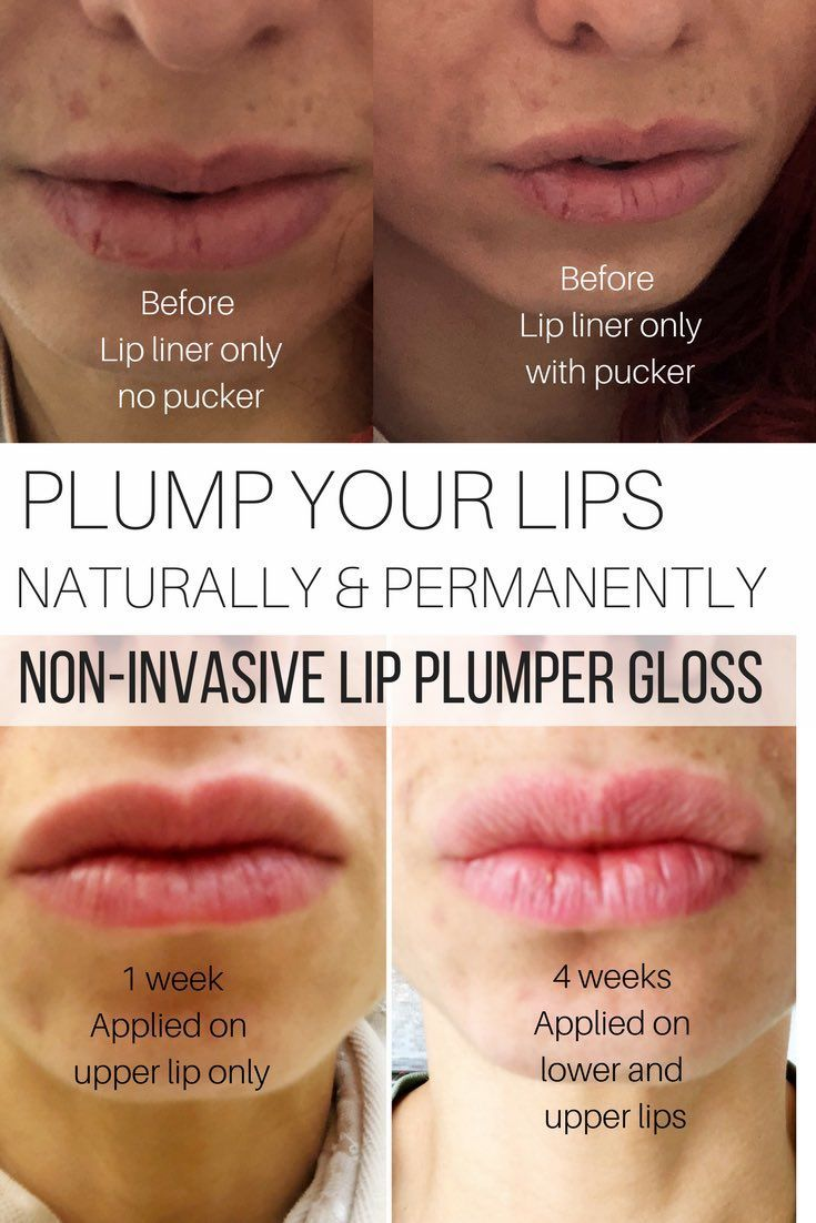 Plump Your Lips Naturally And Permanently Non Invasive Lip Plumper Gloss Before And After Shots Makeup L Natural Lip Plumper Plumping Lip Gloss Lip Plumper