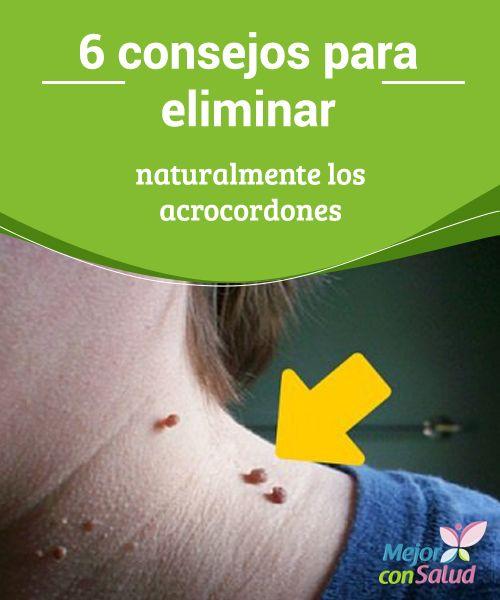 6 consejos para eliminar naturalmente los acrocordones  Los acrocordones o papilomas cutáneos son unas protuberancias pequeñas adheridas al cuello, los antebrazos, los párpados y otras zonas del cuerpo.