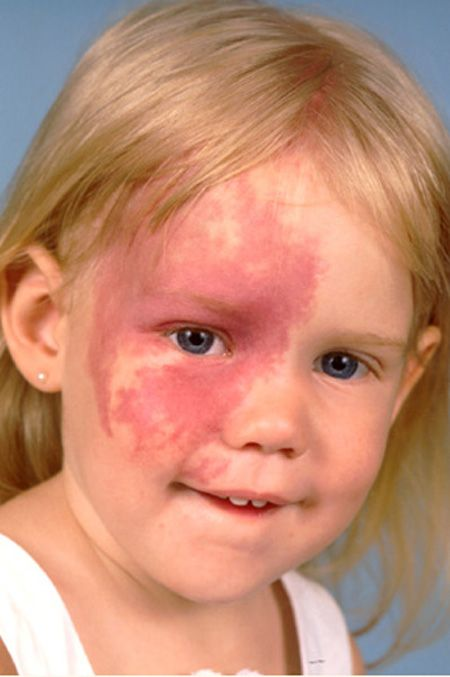 Image result for sturge weber syndrome