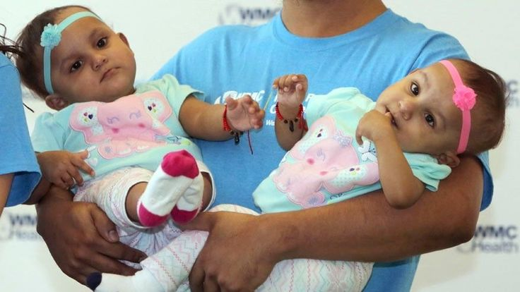 Outlook good as formerly conjoined twins leave NY hospital | http://sibeda.com/outlook-good-as-formerly-conjoined-twins-leave-ny-hospital/