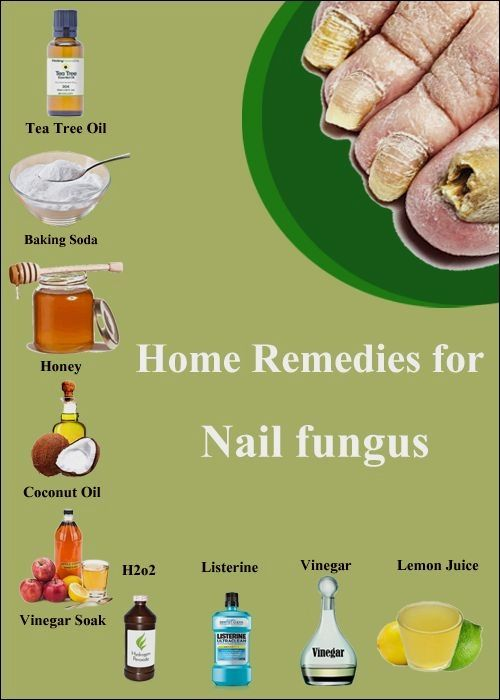 How to Treat toe fungal infection naturally? Effective Home ...