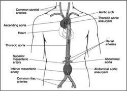 14 best Cardiac Cath Lab Nursing images on Pinterest