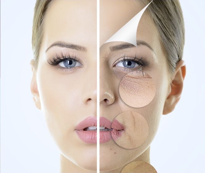 Visible signs of ageing that can be reversed  at Skin Essentials by Mariga including  lines, age spots, sun spots, wrinkles, dullness, scarring, red veins