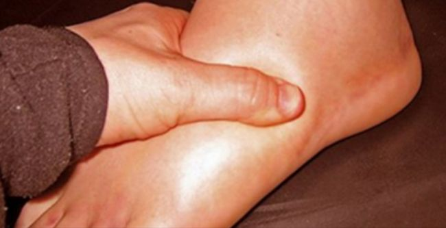 The edema is the name for this condition and it means excess fluid in cells and tissues. This results in joint pain and limb swelling and is common for