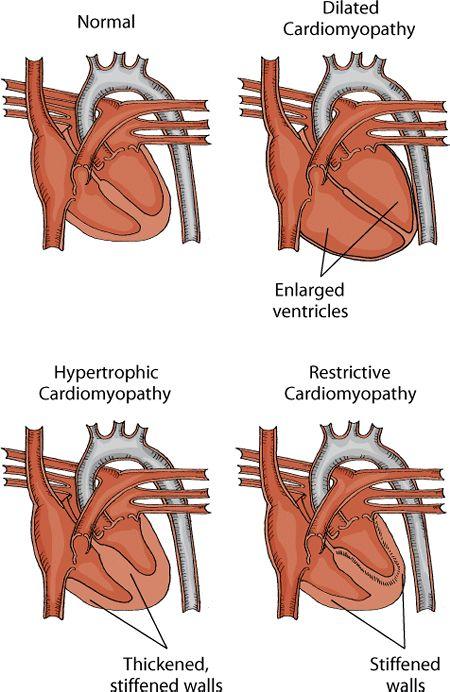 cardiomyopathy nursing