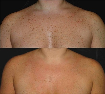 This is why we love Intense Pulsed Light Laser treatments!  Get yours in Orlando at Winter Park Laser-www.winterparklaser.com