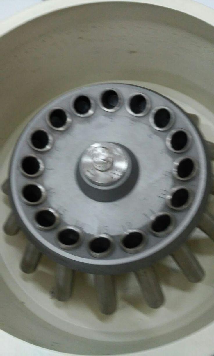 Centrifugamos a 2500 rpm durante 1 minutos y se observa los resultados.
