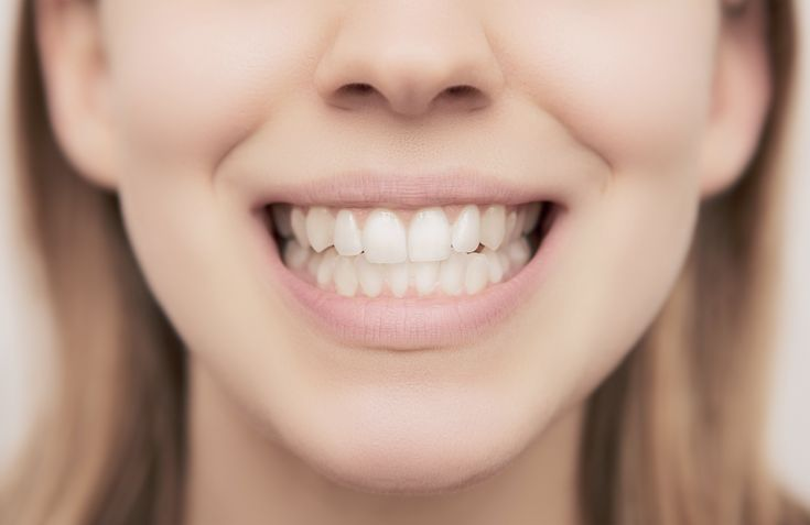 Austin, Texas dermatologist and cosmetic expert Dr. Miriam Hanson uses Botox, Xeomin and Dysport to decrease gingival show and correct a gummy smile.