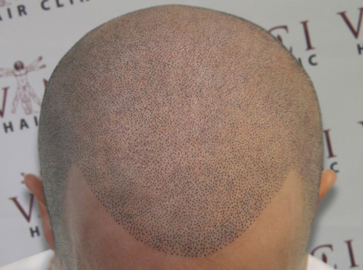 If you don't mind a little pain, head tattoos can fill in your patchy hairline.