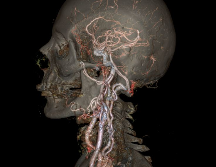 A high-definition image of the skull and the Circle of Willis. Description from pinterest.com. I searched for this on bing.com/images